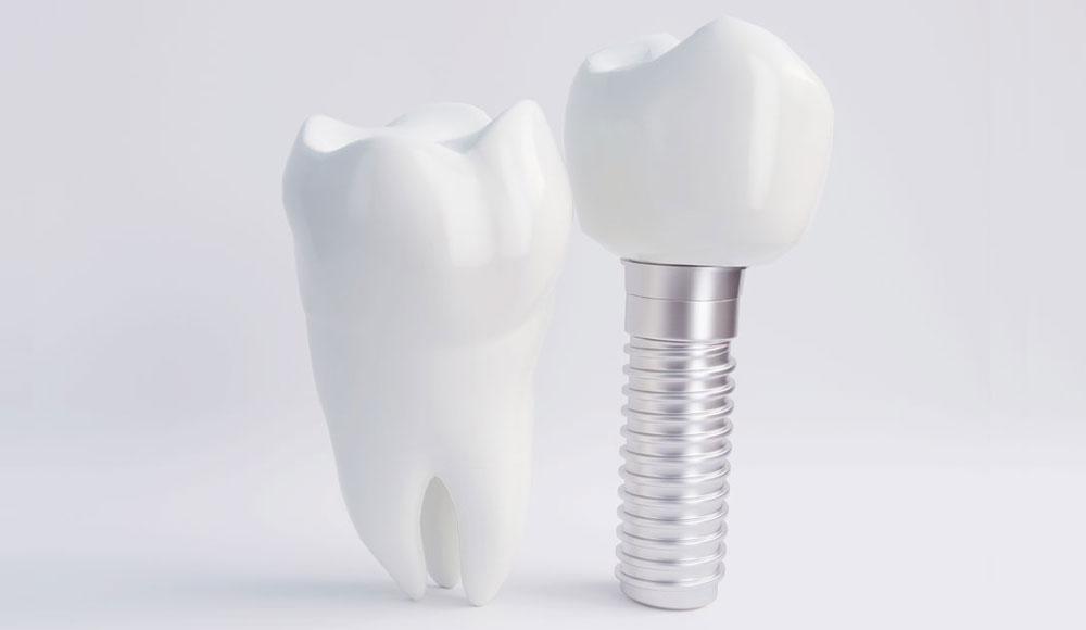 Schöne Zähne auf Zahnimplantaten mit CEREC Behandlung beim Zahnarzt Rauscher in München