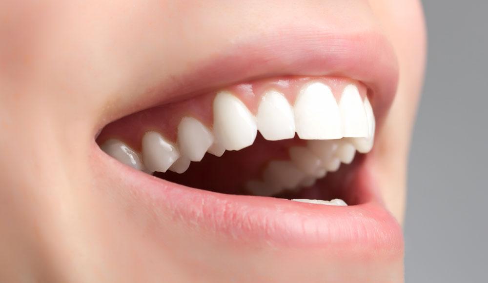 Ästhetische Zähne durch schonende Parodontitis Behandlung beim Zahnarzt Rauscher in München