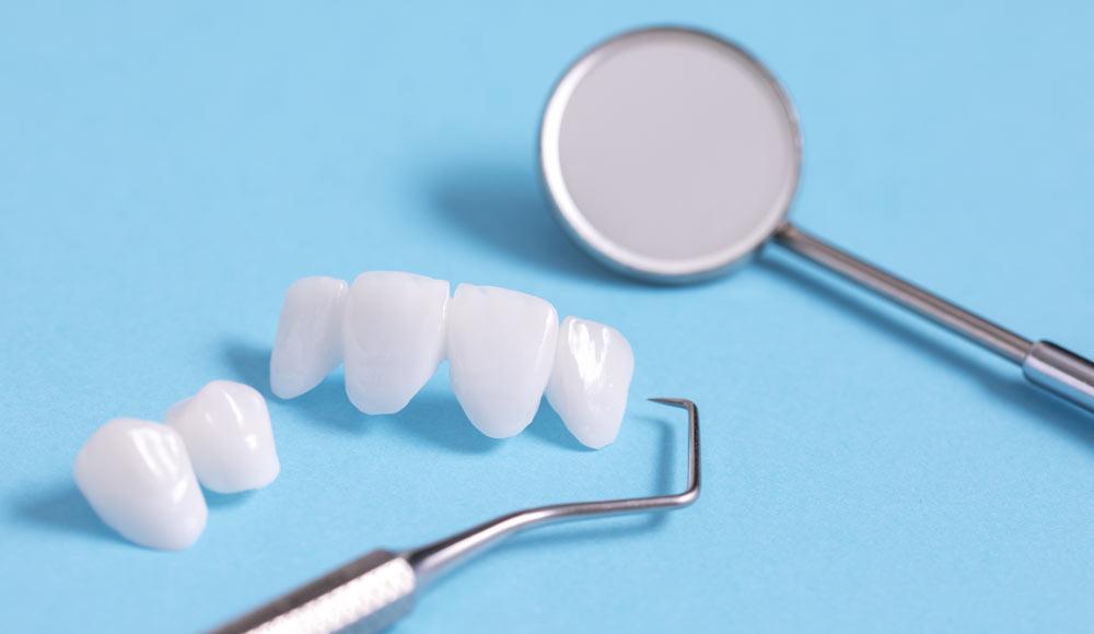 Mit CEREC Behandlung erstellt Zahnarzt Rauscher in München Kronen und Brücken in nur einem Termin