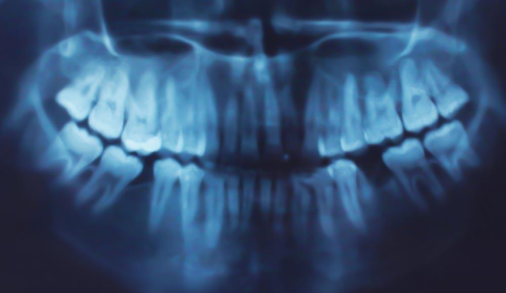 Strahlenarmes digitales Röntgen beim CEREC Zahnarzt Rauscher in München