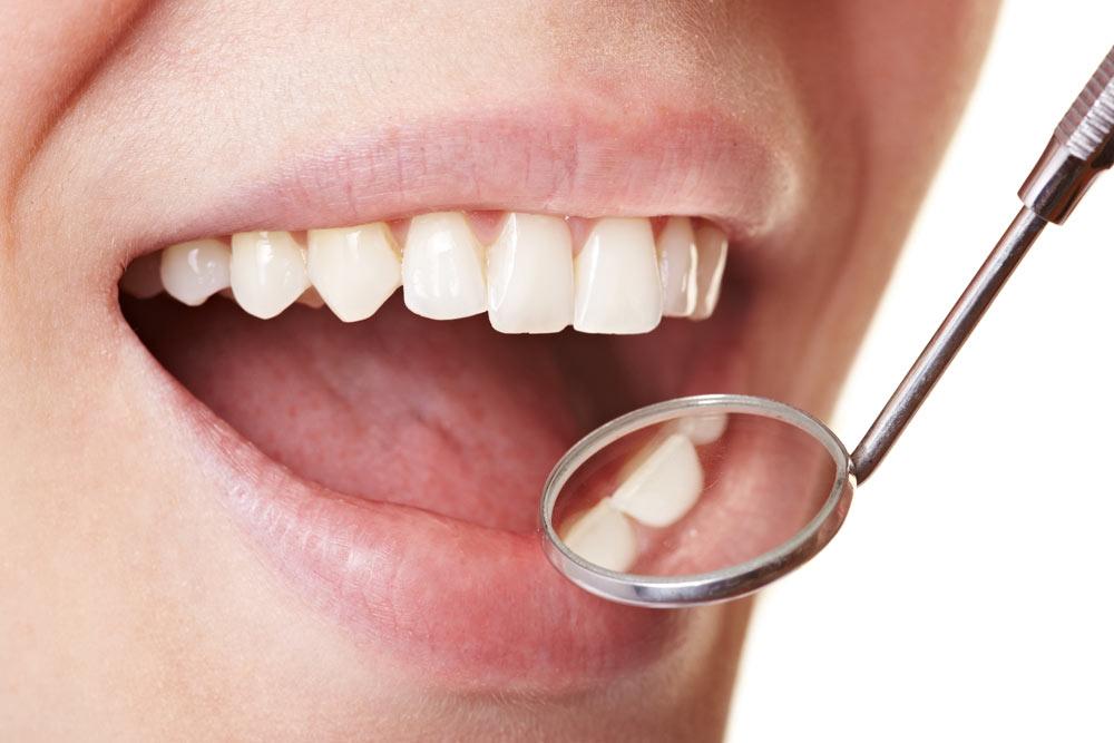 Eine Parodontitis ist gut behandelbar