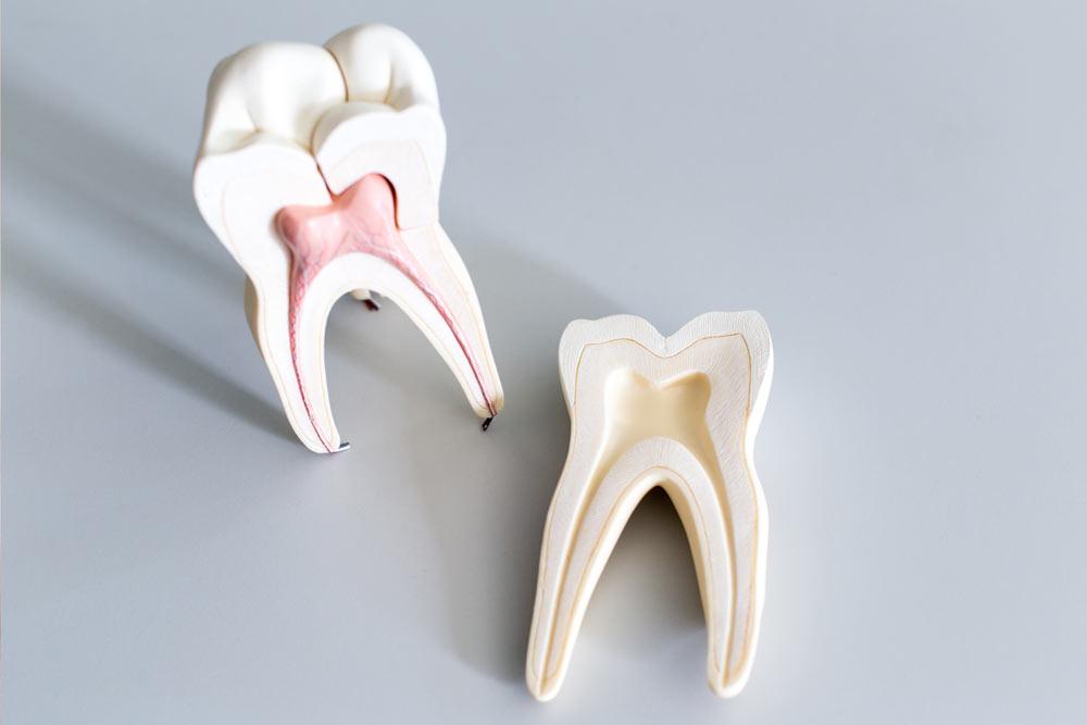 Wurzelbehandlung beim CEREC Zahnarzt Rauscher in München
