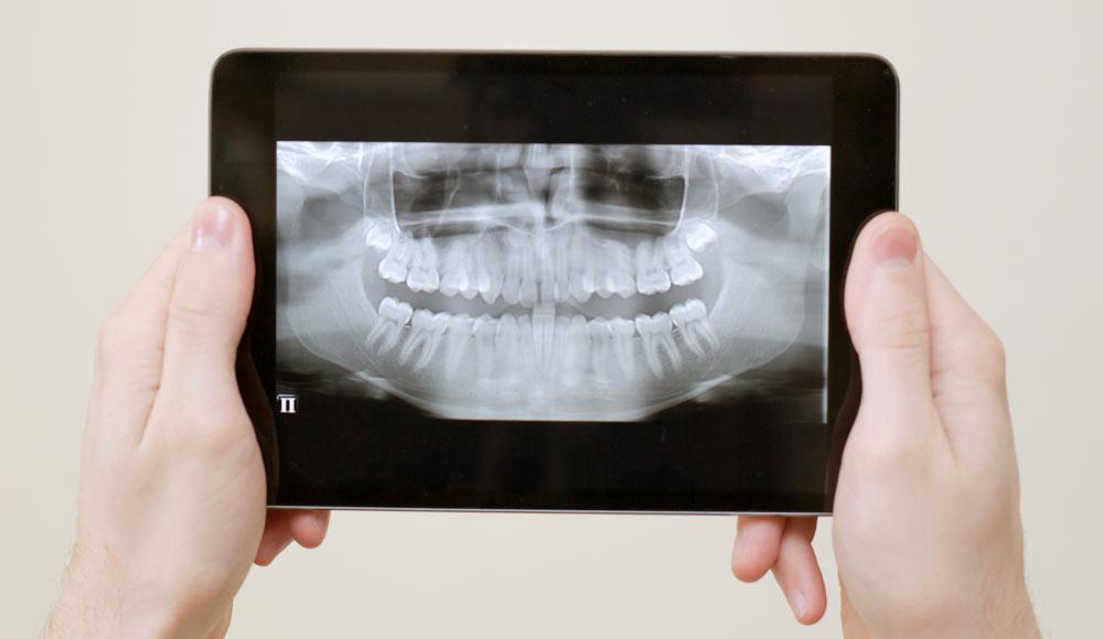 Diagnostik für Zahnimplantate mit digitalem Röntgen beim CEREC Zahnarzt Rauscher in München